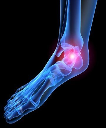 Stevens Point Podiatrist | Stevens Point Heel Pain/Fasciitis | WI | Plaza Podiatry Associates LLC |