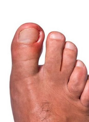 Stevens Point Podiatrist | Stevens Point Ingrown Toenails | WI | Plaza Podiatry Associates LLC |